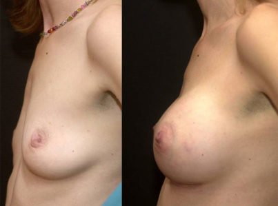 Breast Lift by Implant Alone Surgery